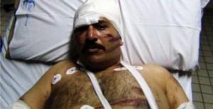 Korban penyiksaan di dalam mesjid Kairo